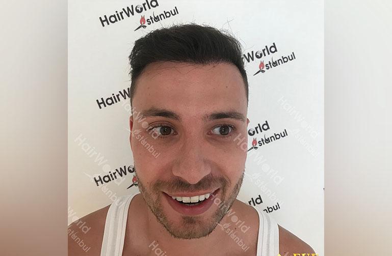 Ervaring HairworldIstanbul rutger2