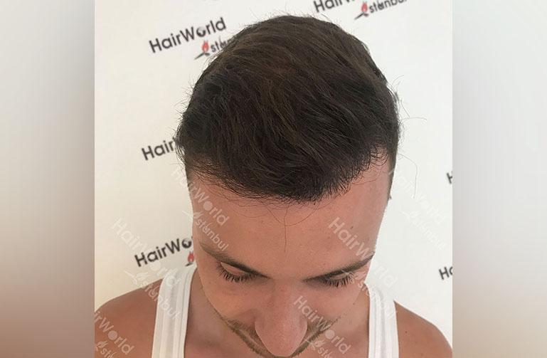 Ervaring HairworldIstanbul rutger4