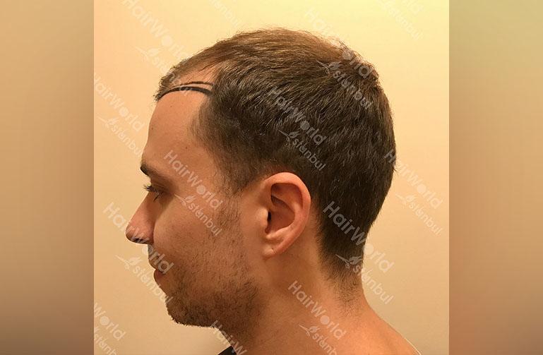Ervaring HairworldIstanbul rutger5