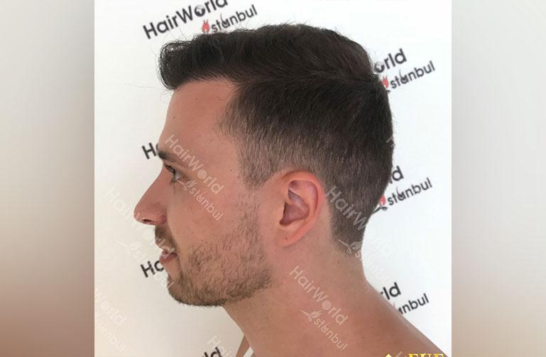 Ervaring HairworldIstanbul rutger6