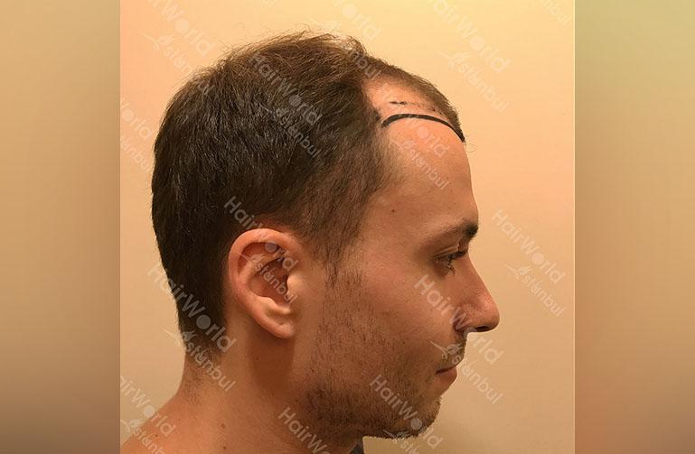 Ervaring HairworldIstanbul rutger7