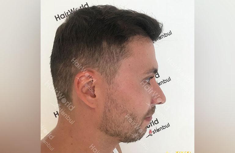 Ervaring HairworldIstanbul rutger8