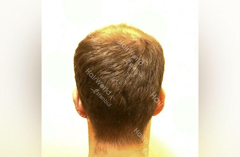 Ervaring HairworldIstanbul rutger9