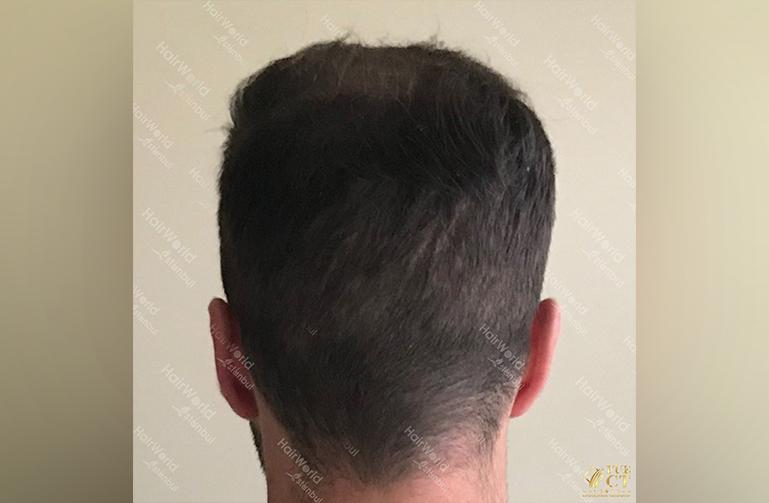 Ervaring HairworldIstanbul slid 10