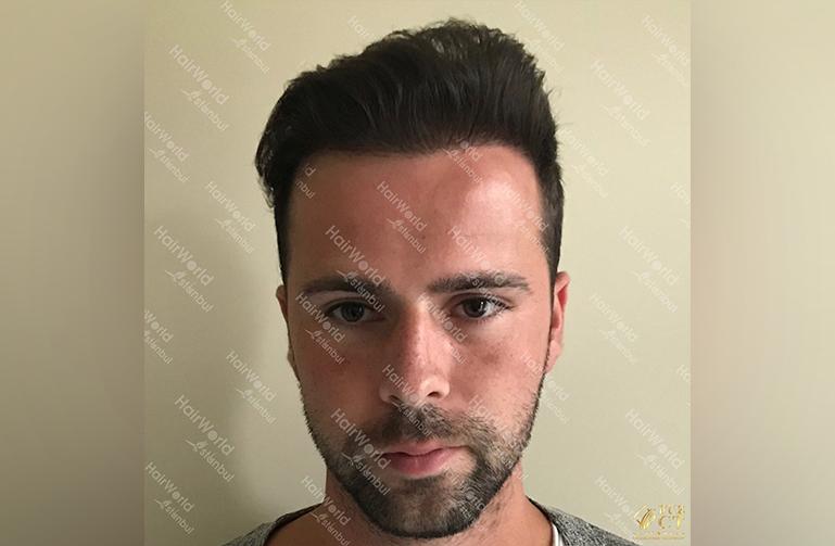 Ervaring HairworldIstanbul slid 2
