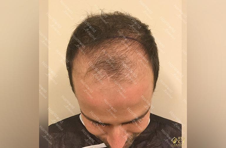 Ervaring HairworldIstanbul slid 3
