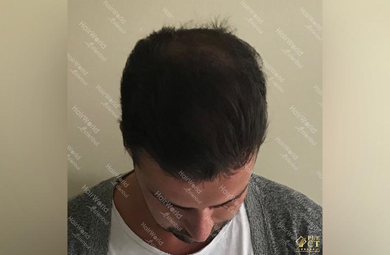 Ervaring HairworldIstanbul slid 4