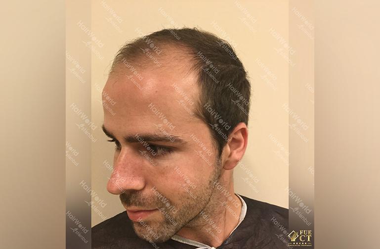 Ervaring HairworldIstanbul slid 5