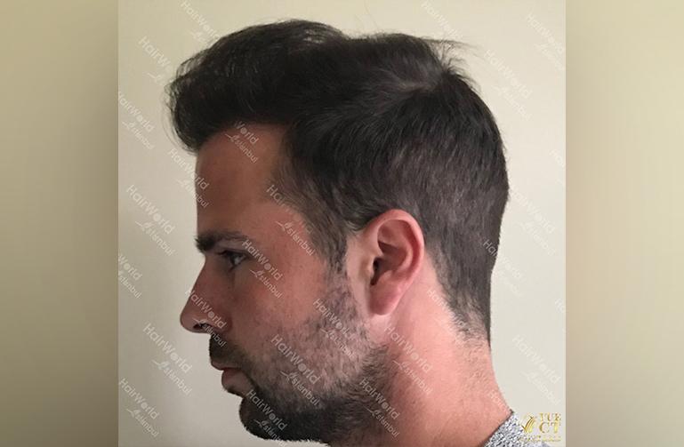 Ervaring HairworldIstanbul slid 6
