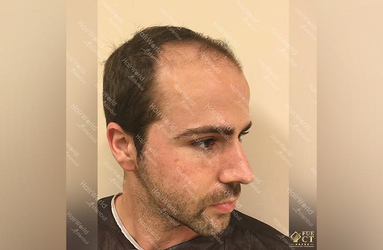 Ervaring HairworldIstanbul slid 7
