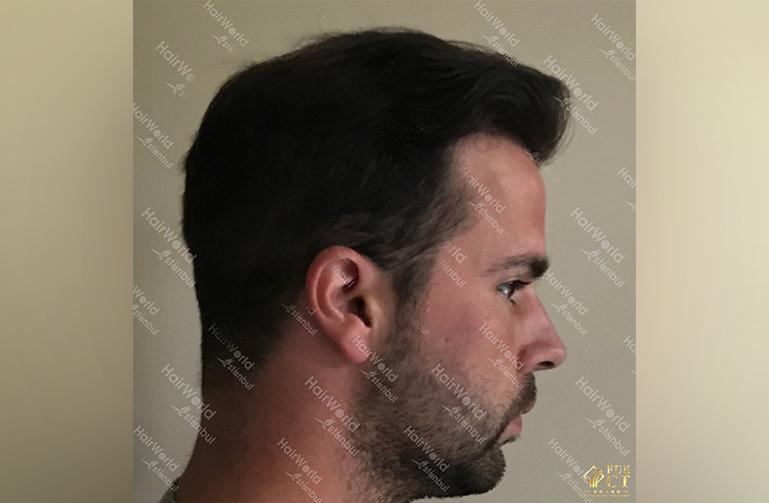 Ervaring HairworldIstanbul slid 8