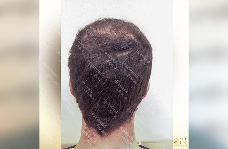 Ervaring HairworldIstanbul slid 9