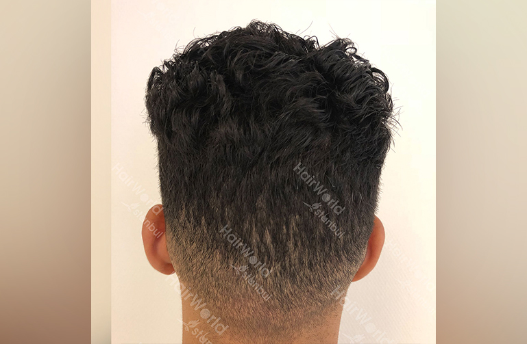 http://nesim-haar-hairworld-istanbul
