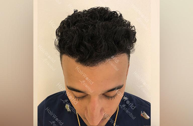 http://nesim-haartransplantatie-hairworld-istanbul