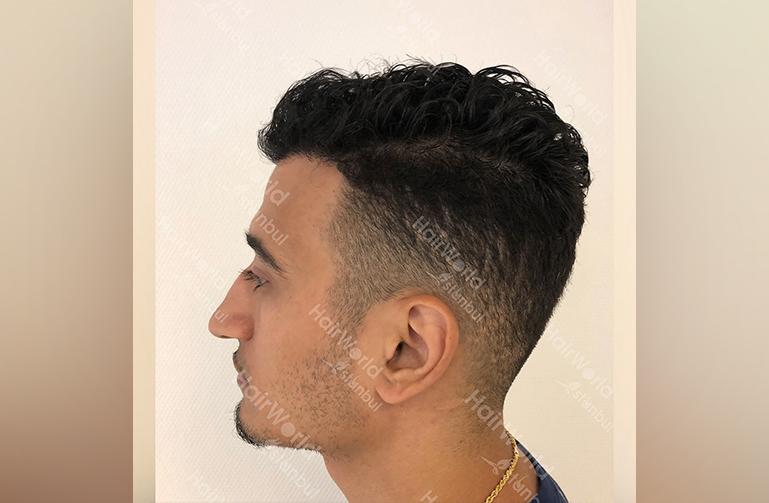 http://nesim-haartransplantatie-ervaring