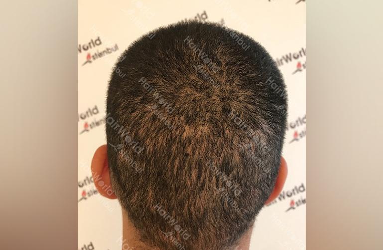 http://nesim-haartransplantatie-voor-en-na