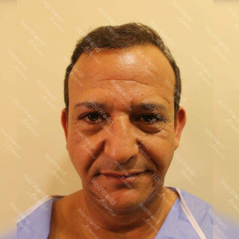 najib-amhali-haartransplantatie-turkije-before