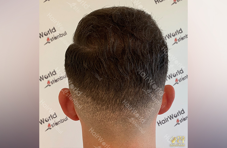 Ervaring HairworldIstanbul 10 1