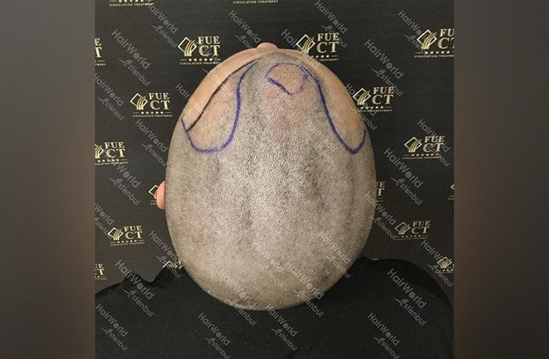 Ervaring HairworldIstanbul 11a