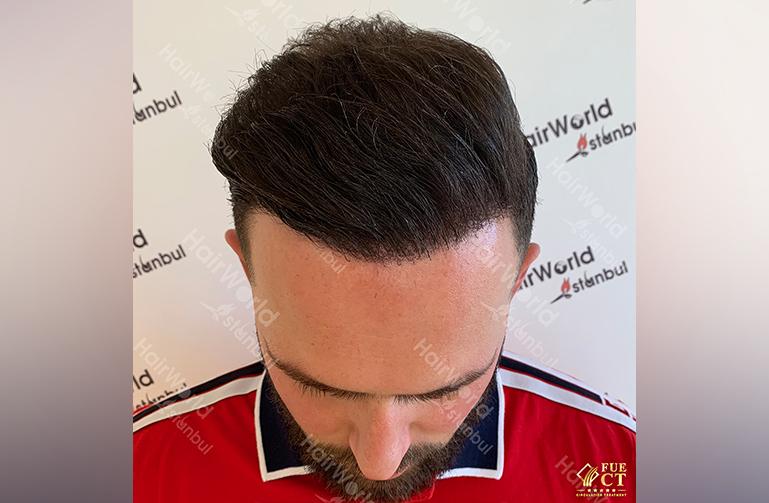 Ervaring HairworldIstanbul 4 1