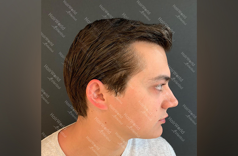 Ervaring HairworldIstanbul 8