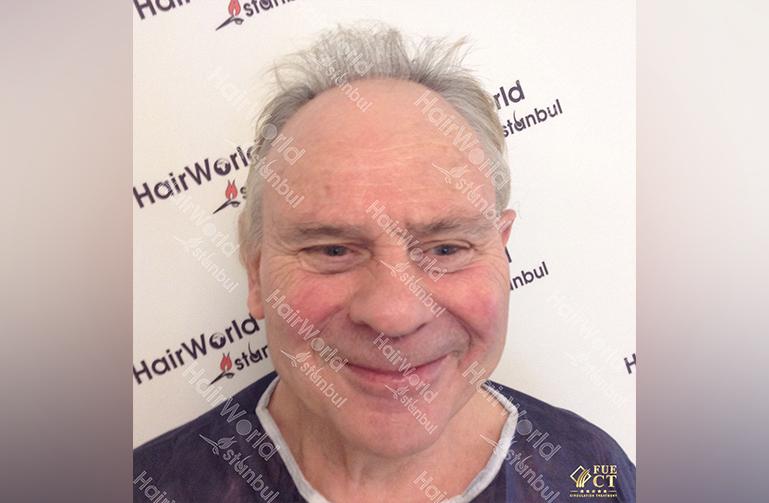 Ervaring HairworldIstanbul willy1