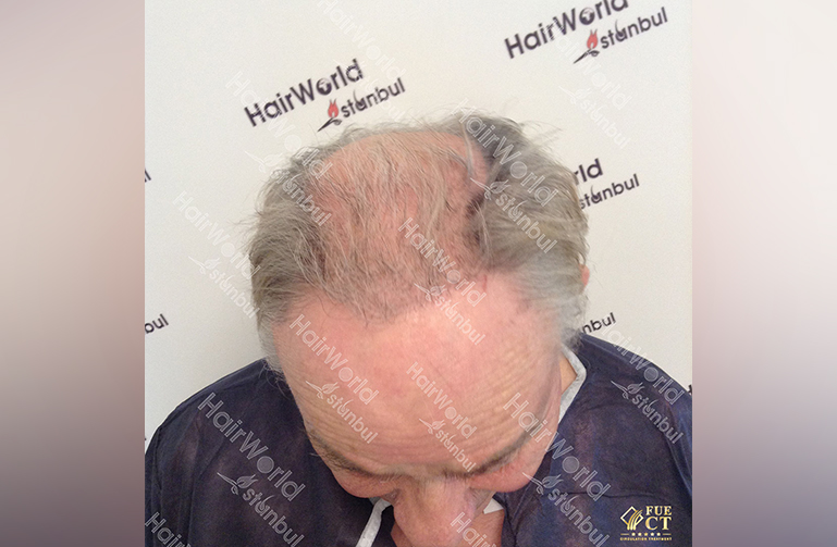 Ervaring HairworldIstanbul willy3