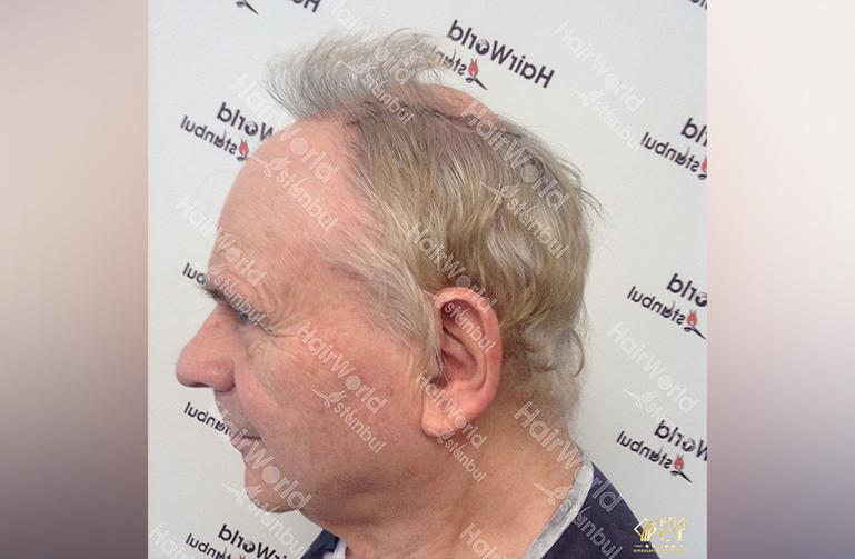 Ervaring HairworldIstanbul willy5