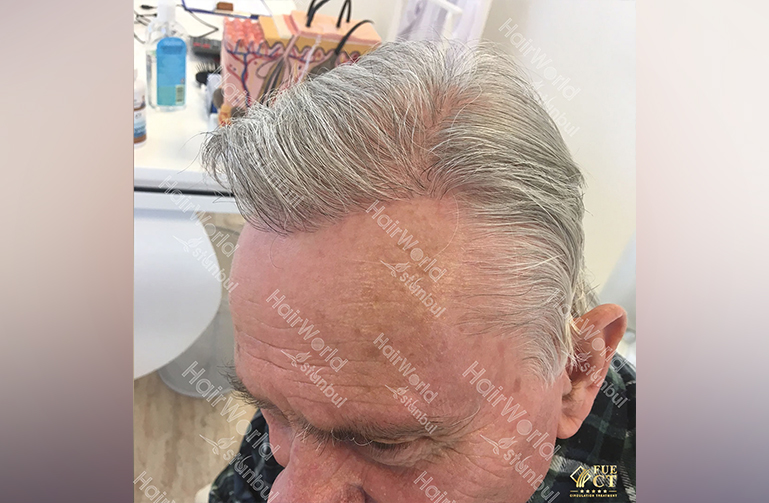 Ervaring HairworldIstanbul willy6