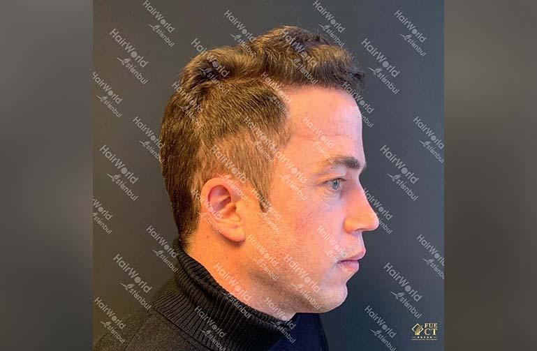 Ervaring HairworldIstanbul 6 1