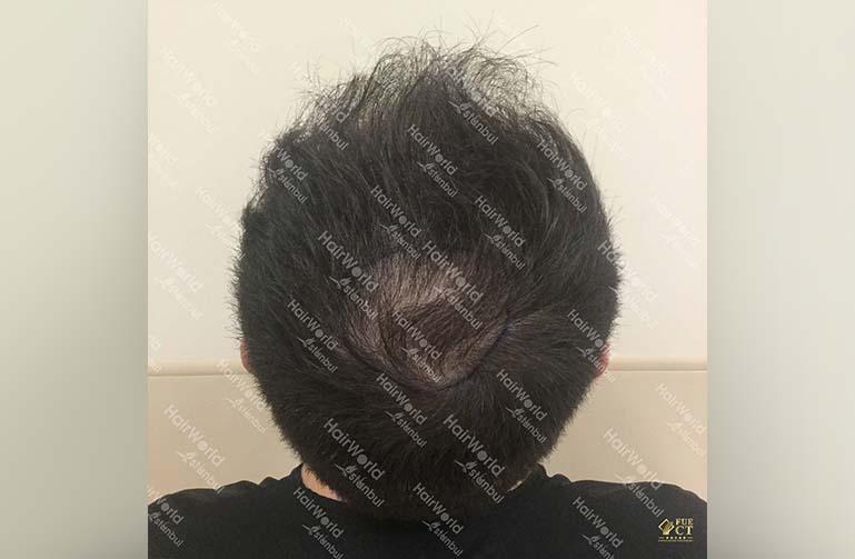 Ervaring HairworldIstanbul 11 1