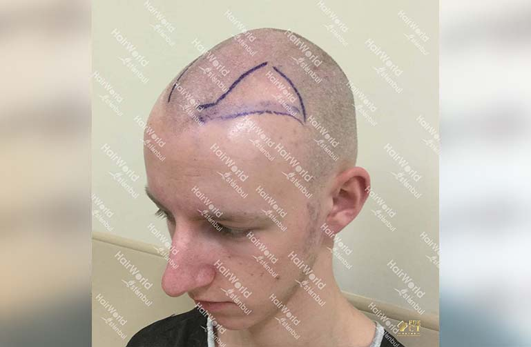 Ervaring HairworldIstanbul 7 2