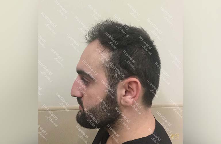 Ervaring HairworldIstanbul 7 3