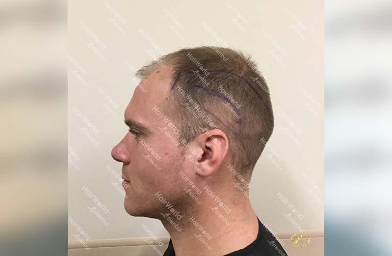 Ervaring HairworldIstanbul 7