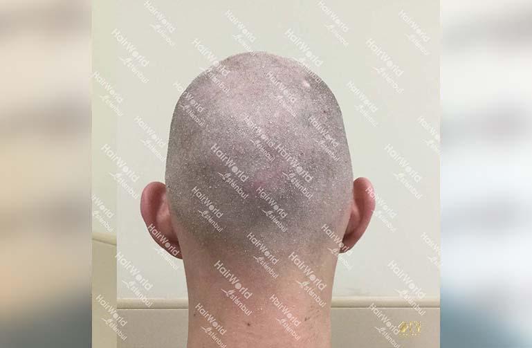 Ervaring HairworldIstanbul 9