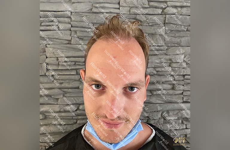 Ervaring HairworldIstanbul 1