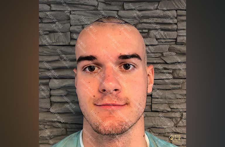 Ervaring HairworldIstanbul 1 1