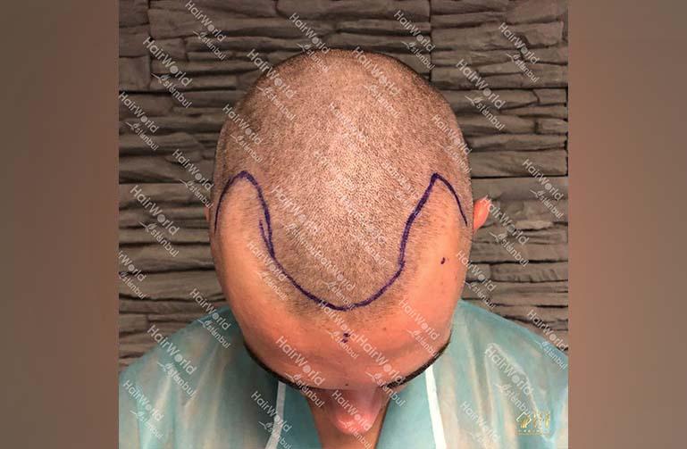 Ervaring HairworldIstanbul 3