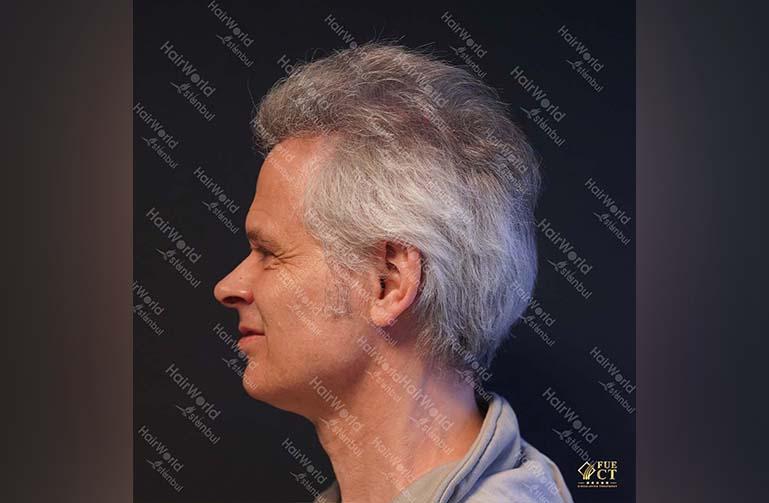 Ervaring HairworldIstanbul 6 2