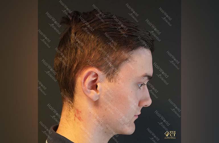 Ervaring HairworldIstanbul 6