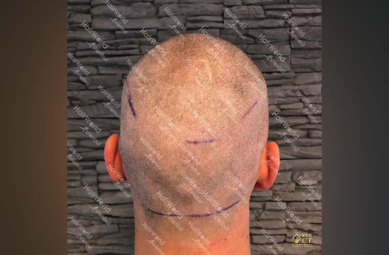 Ervaring HairworldIstanbul 9 1