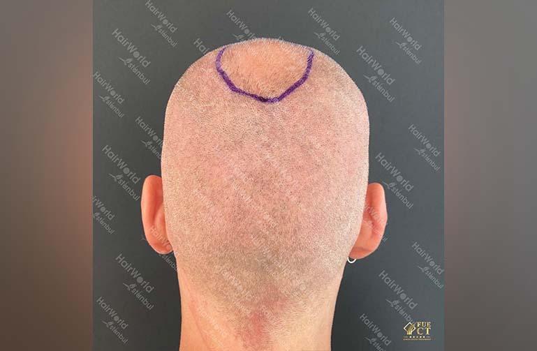 Ervaring HairworldIstanbul 9 2