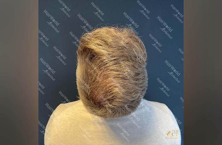 Ervaring HairworldIstanbul 12 1