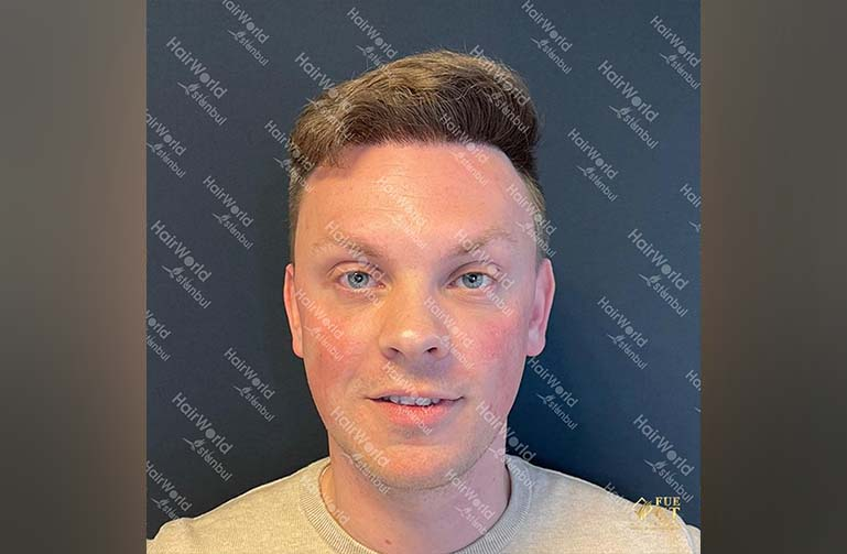 Ervaring HairworldIstanbul 2 1
