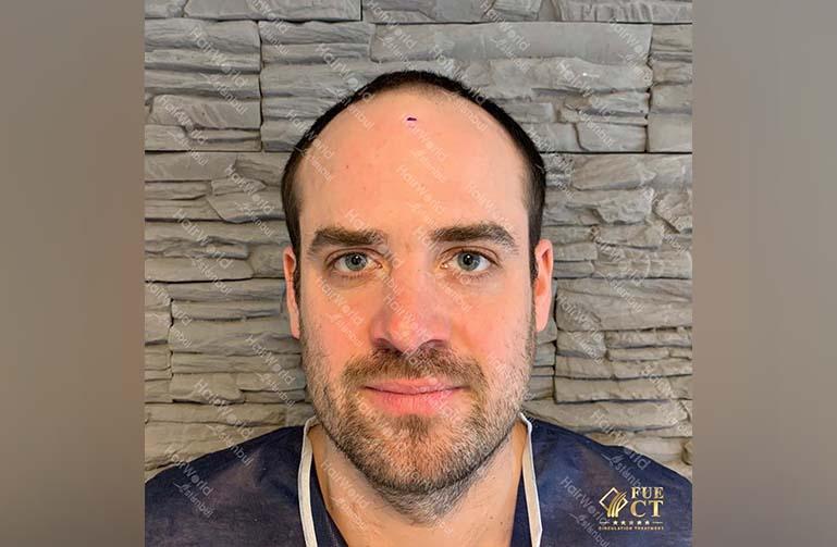 Ervaring HairworldIstanbul 1 2