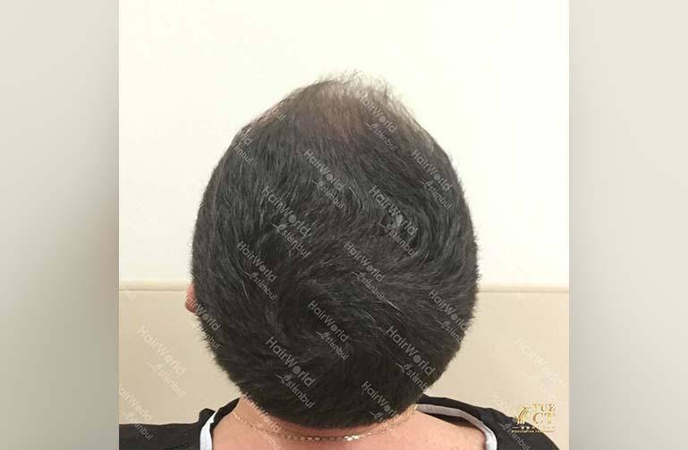 Ervaring HairworldIstanbul 11