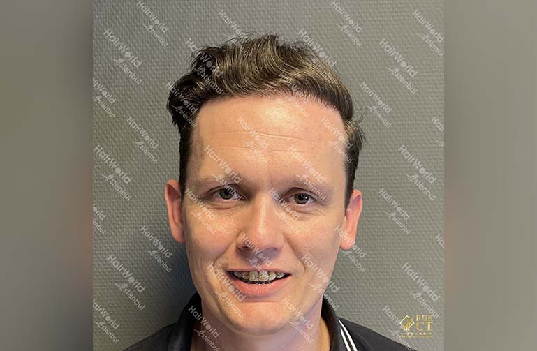 Ervaring HairworldIstanbul 2 3