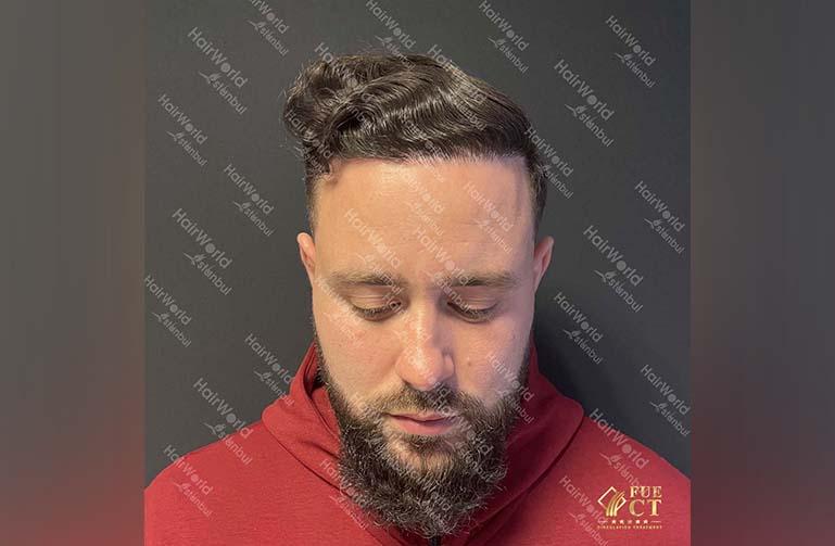 Ervaring HairworldIstanbul 2