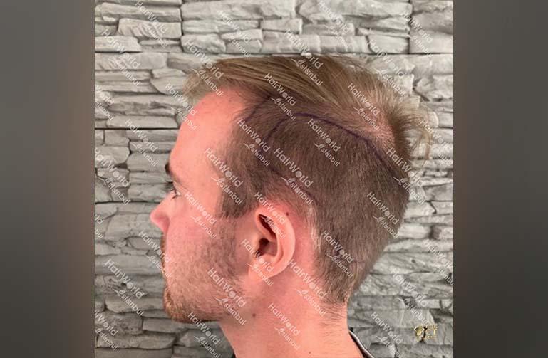 Ervaring HairworldIstanbul 5 1