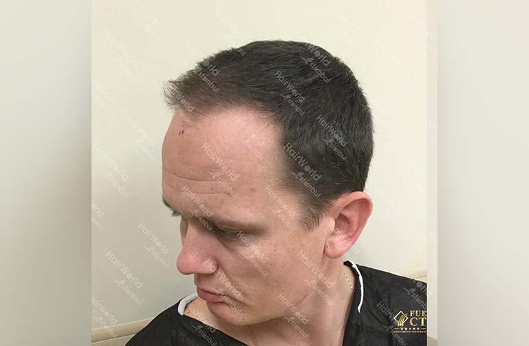 Ervaring HairworldIstanbul 5 3